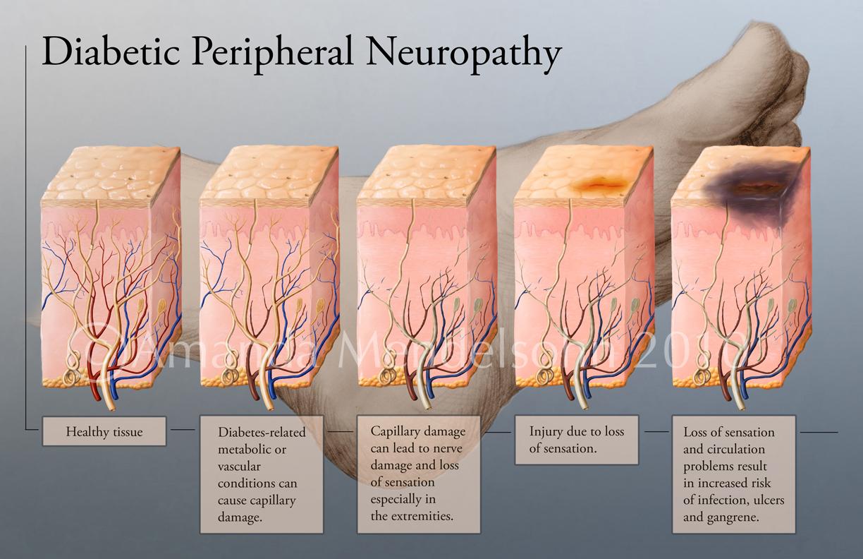 Neuropatie și pierderea în greutate