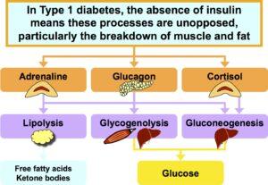 Cetoacidoza diabetica -diagnostic