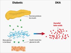 Factori favorizanti in cetoacidoza diabetica