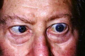 Afectarea extraretiniana in diabetul zaharat