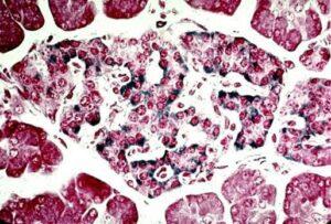 Noi celule producatoare de insulina in pancreas