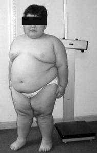 Sindroame genetice asociate cu diabetul zaharat
