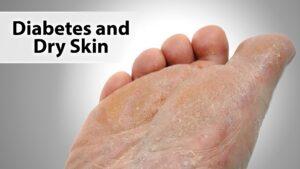Afectiunile pielii in diabet