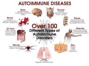 Ce inseamna bolile autoimune?