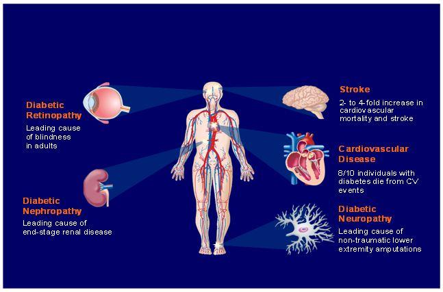 Efectele diabetului
