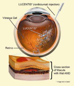 Nou tratament pentru retinopatia diabetica
