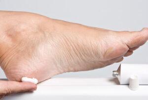 Piciorul diabetic - factori precipitanti si perpetuanti