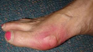 Hiperuricemia - factori de risc
