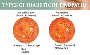Retinopatia diabetica - informatii complete