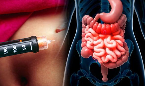 Flora intestinala legata de aparitia diabetului