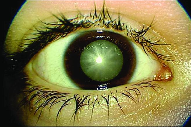 Afectiunile anexe oculare in diabetul zaharat