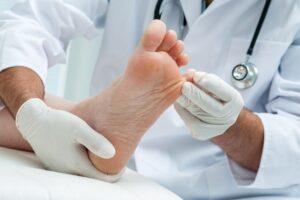 Piciorul diabetic - informatii complete