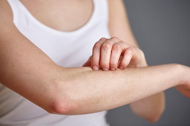 Pielea iritata si diabetul